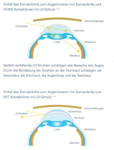 Zeigt den UV-Schutz durch eine Tageslinsen.