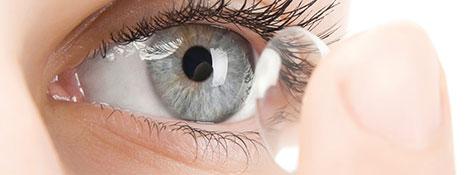 Aufsetzen einer weichen Kontaktlinse