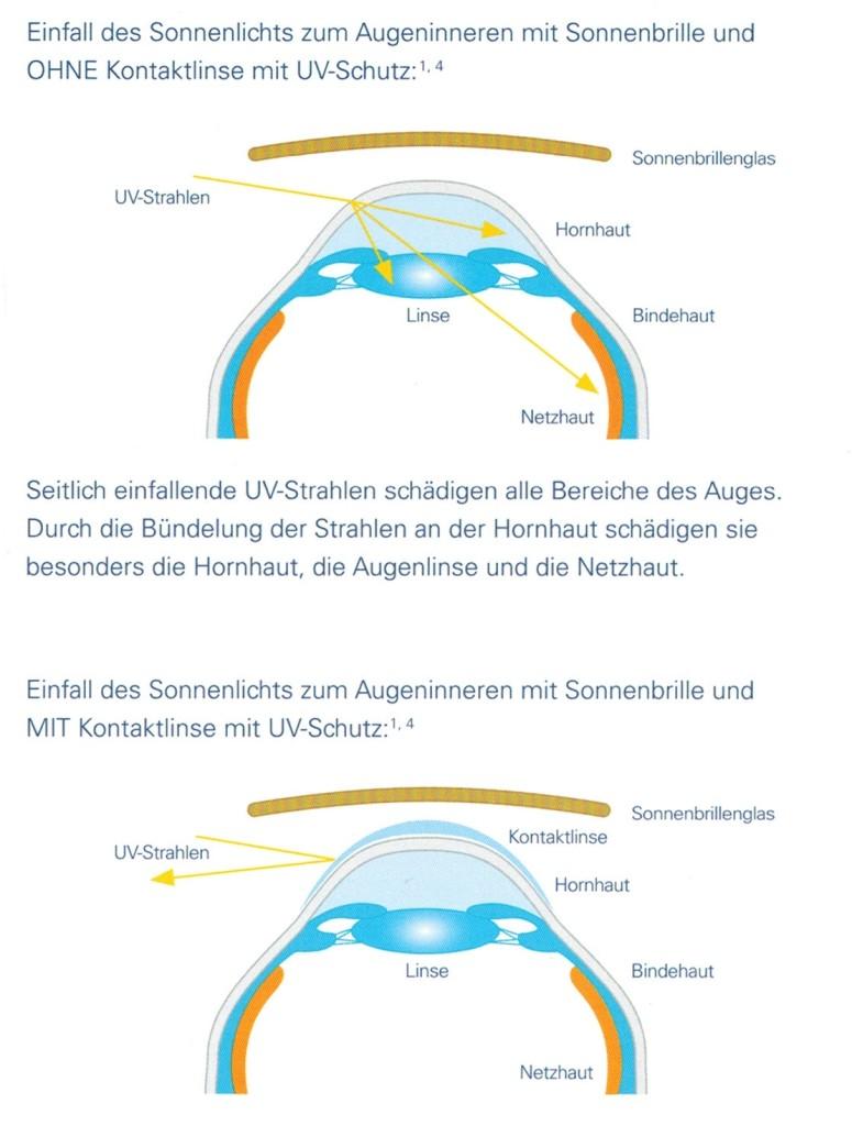 UV Schutz mit Sonnenbrille und mit Monatslinsen